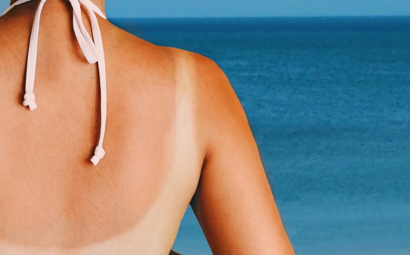 この夏の日焼け対策、どうする?ナチュラル系の日焼け止めとすごいサプリのススメ。
