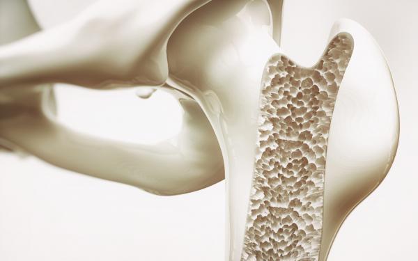 カルシウムだけじゃない。骨密度を維持するために必要なこと。