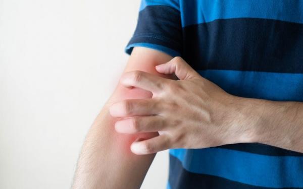 なかなか改善されない慢性蕁麻疹。ストレス以外で考えられる原因とは?